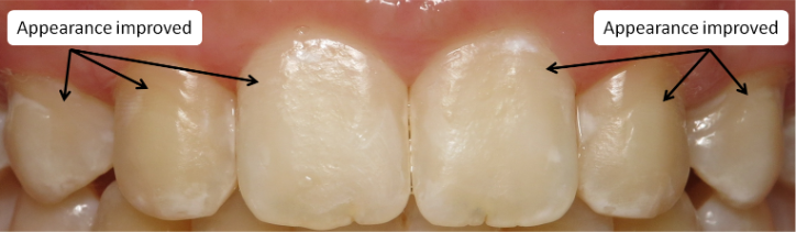 Teeth After White Spot Treatment
