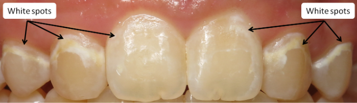 Teeth Before White Spot Treatment