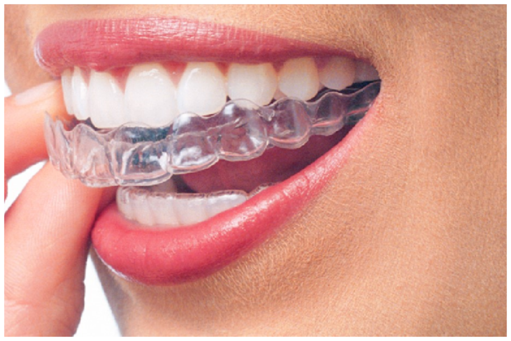 We are a leading Invisalign provider.